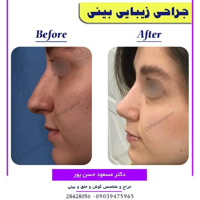 جراحی زیبایی بینی با تصویر