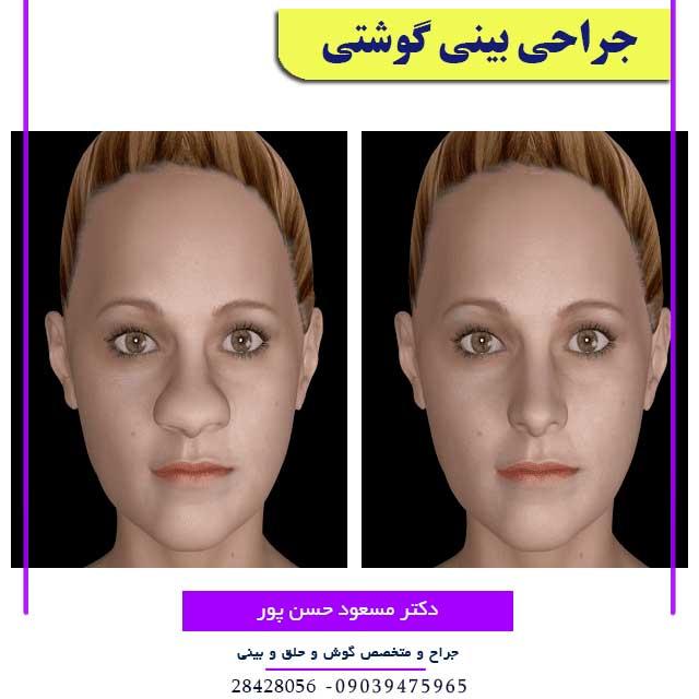 تصویر انیمیشنی بینی گوشتی