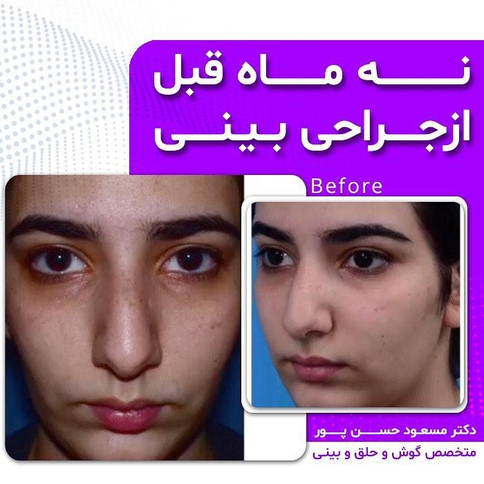 عکس دختر جوان با بینی عمل شده