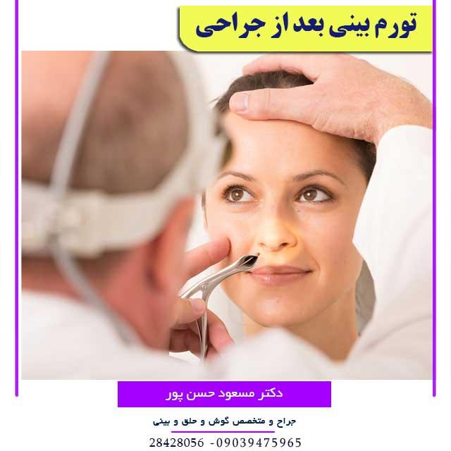 تورم بینی بعد از عمل