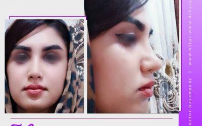 بهترین جراح بینی فانتزی در سعادت آباد