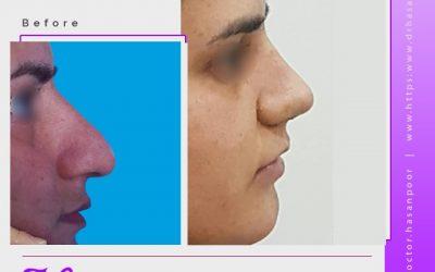 تاثیر چسب بر فرم بینی