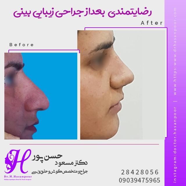 رفع قوز بینی و اصلاح نوک بینی