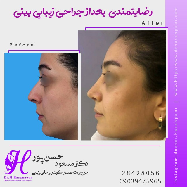 جراحی زیبایی بینی به صورت کاملا طبیعی