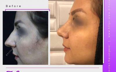 تغییر چهره بعد از جراحی بینی