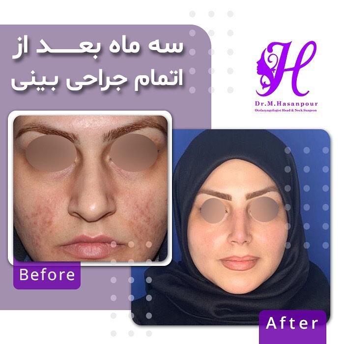 نمونه جراحی بینی