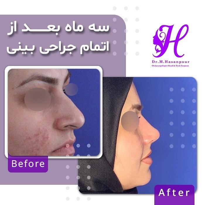 جراحی بینی دکتر حسن پور