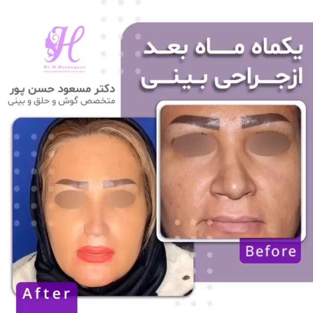 جراحی بینی در خانم جوان