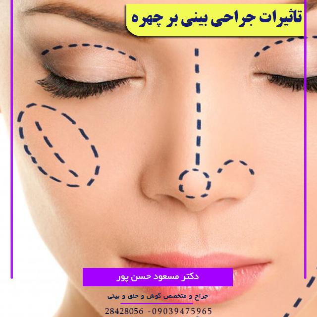 اثرات جراحی بینی