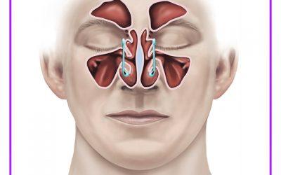 گرفتگی بینی بعد از جراحی خطرناک است ؟