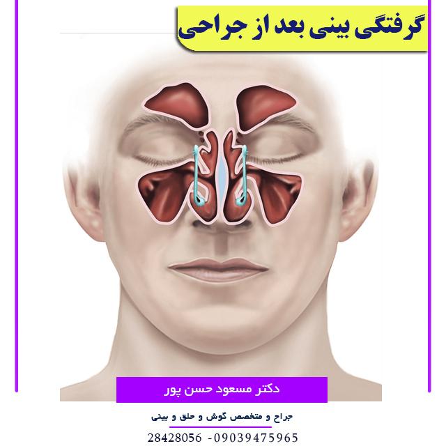 گرفتگی بینی