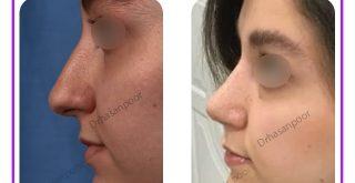 جراحی بینی ماملا طبیعی
