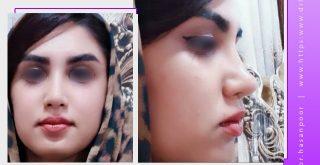رضایتمندی بعد از جراحی بینی