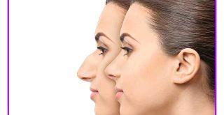کارهای بعد از جراحی بینی
